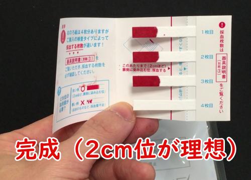 STDチェッカー血液採取の画像